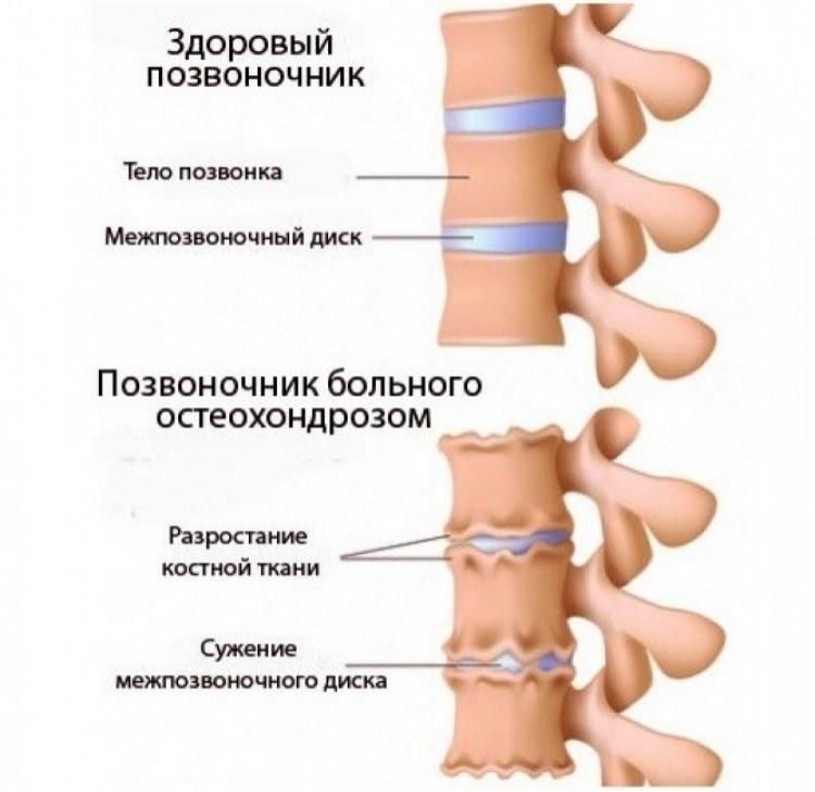 nemeyut_ruki_osteohondroz_750x730